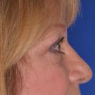Eyelid-surgery-upper_t?1331018298