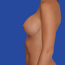 Breast-augmentation_t?1331019598