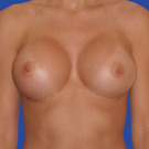 Breast-augmentation_t?1331019604