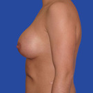 Breast-augmentation_t?1331019679