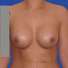 Breast-augmentation_t?1331019684