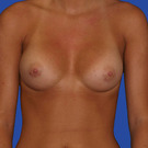 Breast-augmentation_t?1331019695