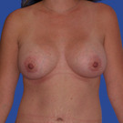 Breast-augmentation_t?1331019725