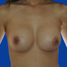 Breast-augmentation_t?1331019792