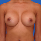 Breast-augmentation_t?1331019802