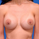 Breast-augmentation_t?1331019933