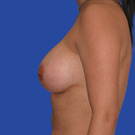Breast-augmentation_t?1331019950