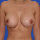 Breast-augmentation_t?1331019955