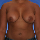 Breast-augmentation_t?1331020007