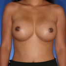 Breast-augmentation_t?1352848968