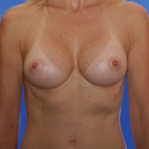 Breast-augmentation_t?1331020092