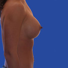 Breast-augmentation_t?1331020117
