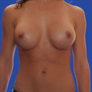 Breast-augmentation_t?1331020127