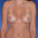 Breast-augmentation_t?1331020214