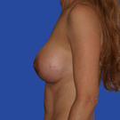 Breast-augmentation_t?1331020265