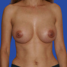 Breast-augmentation_t?1331020271