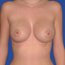 Breast-augmentation_t?1331020302
