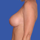 Breast-augmentation_t?1331020329