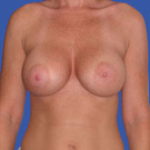 Breast-augmentation_t?1331020334
