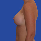 Breast-augmentation_t?1331020345