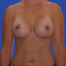 Breast-augmentation_t?1331020356