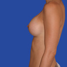 Breast-augmentation_t?1331020389