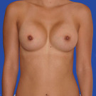 Breast-augmentation_t?1331020395