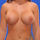 Breast-augmentation_t?1331020528