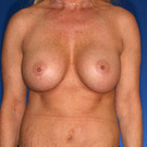 Breast-augmentation-repeat_t?1418943808