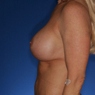 Breast-augmentation-repeat_t?1418943852
