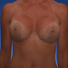 Breast-augmentation-repeat_t?1331020567