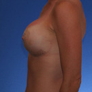 Breast-augmentation-repeat_t?1331020572