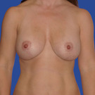 Breast-augmentation-repeat_t?1331020595