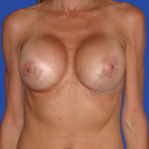 Breast-augmentation-repeat_t?1331020608