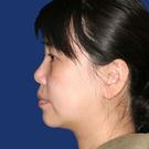Chin-augmentation_t?1331021355