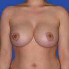 Breast-lift_t?1339456369