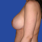 Breast-lift_t?1339456392