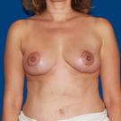 Breast-reduction_t?1331021477