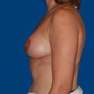 Breast-reduction_t?1331021483