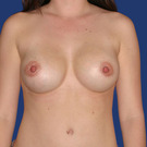 Breast-augmentation-repeat_t?1331021496