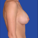 Breast-augmentation-repeat_t?1331021755