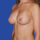 Breast-augmentation-repeat_t?1331021762
