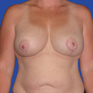 Breast-augmentation-repeat_t?1331021767