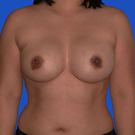 Breast-augmentation-repeat_t?1331021785