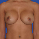 Breast-augmentation-repeat_t?1331021795