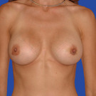 Breast-augmentation-repeat_t?1331021807