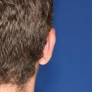 Otoplasty-ear-surgery_t?1331022584