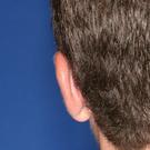 Otoplasty-ear-surgery_t?1331022591