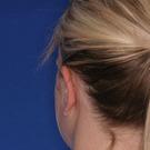 Otoplasty-ear-surgery_t?1331022609