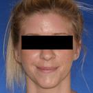 Otoplasty-ear-surgery_t?1331022639